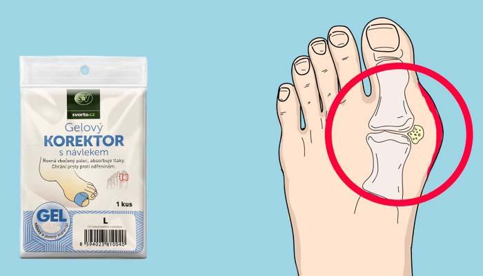 """Valgu-correct para o tratamento da deformidade no valgo: livrar-se dos """"ossos na perna"""" por 1 mês por apenas!"""