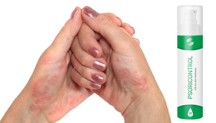 PsoriControl contra a psoríase: eficaz em vários tipos e graus da doença