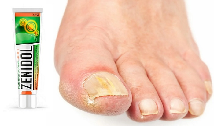Zenidol do fungo dos pés e das unhas: uma maneira fácil de acabar com as micoses, coceiras e rachaduras!