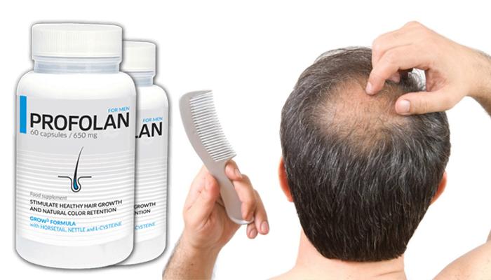 Profolan para o crescimento do cabelo: resultados satisfatórios após 3 meses de uso regular!